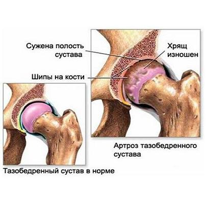 Шипы в тазобедренном суставе дистрофия хряща коленного сустава