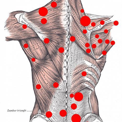 Миофасциальный синдром грушевидной мышцы